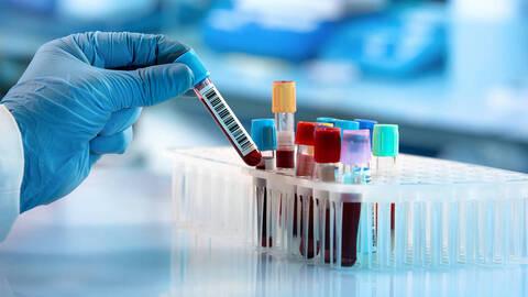 Coronavirus Possibile Sovrastima Dei Casi Studio Dell Universita Di Oxford Terra Nuova